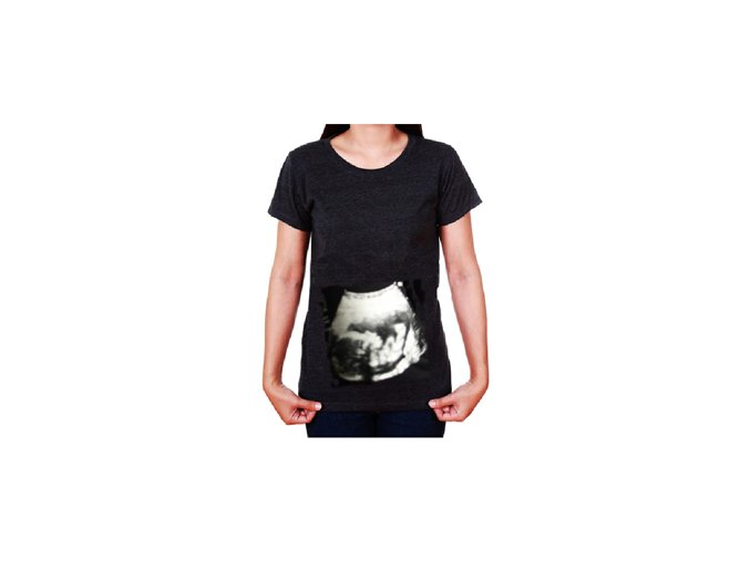 Mama dres . vlastní těhotenské tričko