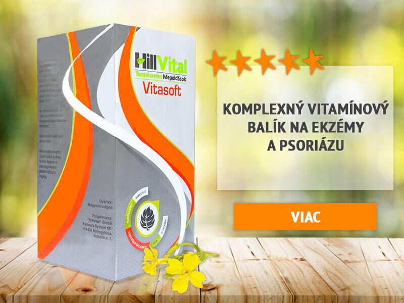 hillvital-banner-preklik-vitasoft-vitaminy-kozne-choroby