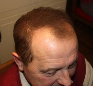 008-po-zahuštění-Mane-husté-vlasy