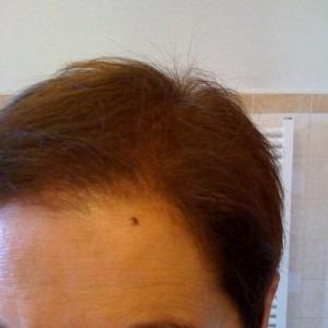 010-po-zahuštění-Mane-husté-vlasy