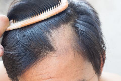alopecia%20lysiny%20ple%C5%A1%20Mane%20zahu%C5%A1t%C4%9Bn%C3%AD%20vlas%C5%AF