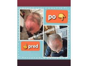 LR L-Recapin Séria Šampón a Tonikum proti vypadávaniu vlasov