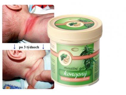 masážní gel konopný