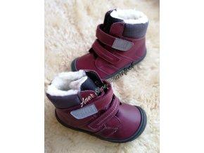 Filii Himalaya Nappa Tex Wool Berry 1