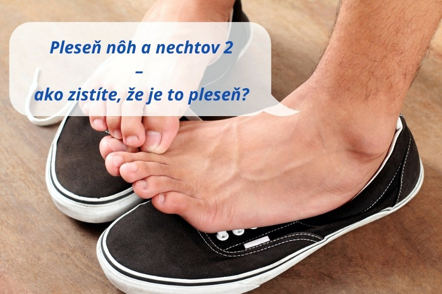 Pleseň nôh a nechtov – ako zistíte, že je to pleseň?