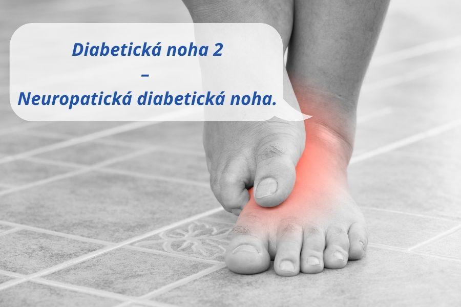Neuropatická diabetická noha
