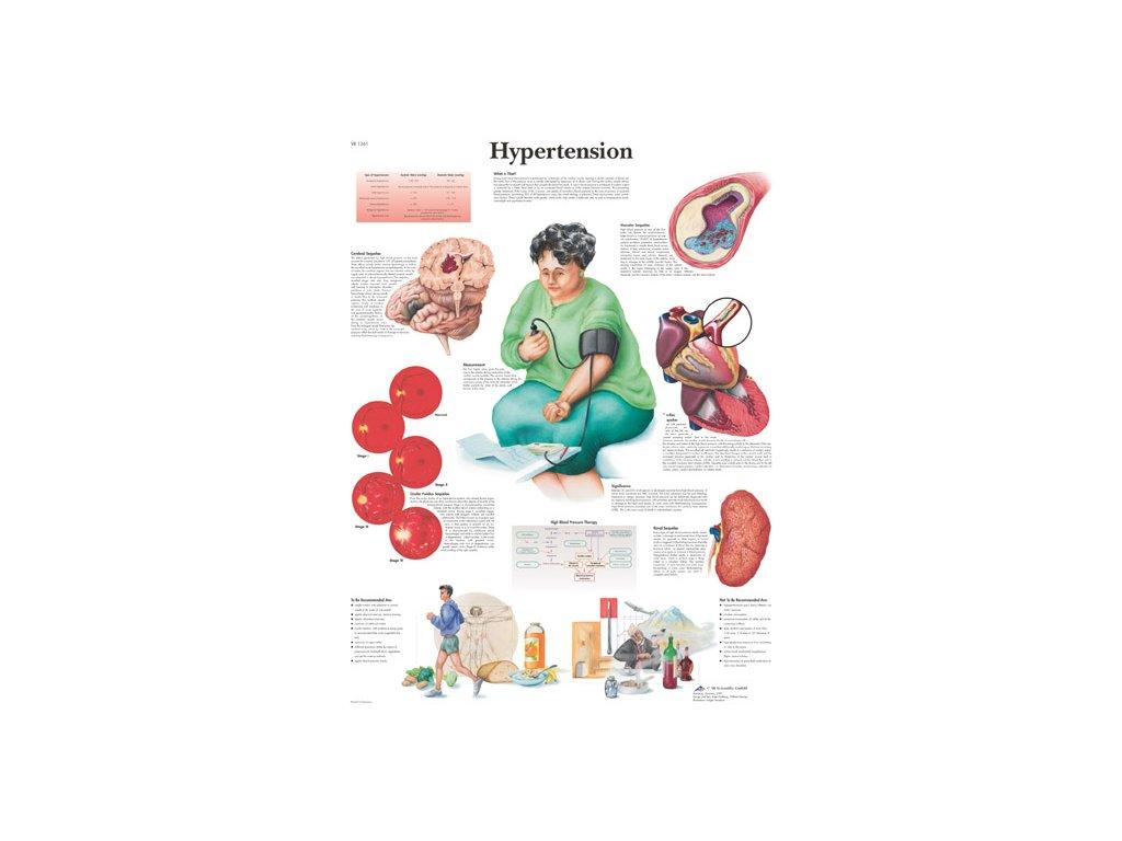 Výuková anatomie - hypertense