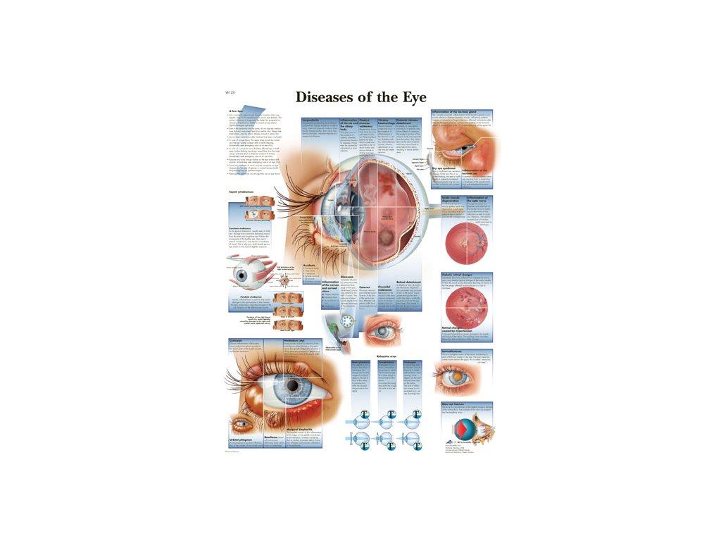 Výuková anatomie - oko