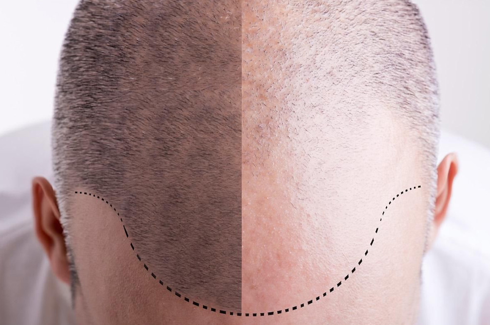 Jak efektivně řešit ustupující vlasovou linii a zvyšující se čelo?