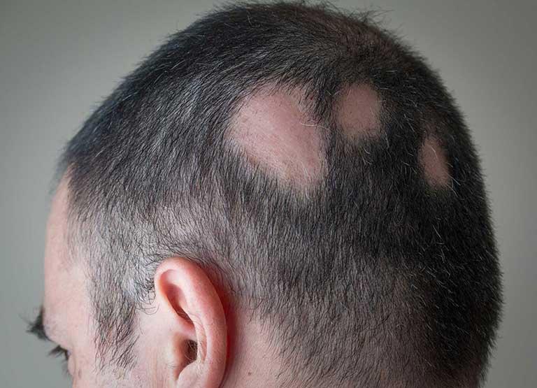 alopecia_areata_aurio