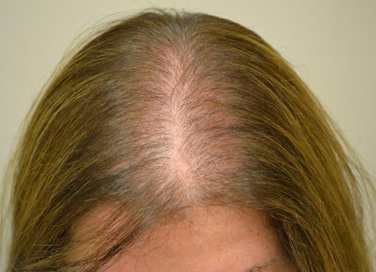 difuzni_alopecie_aurio