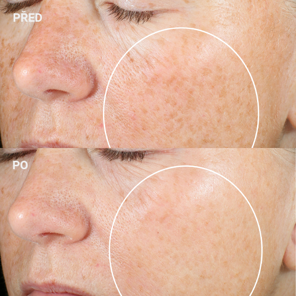 StriVectin-Super-C-Retinol-Brighten-Correct-Vitamin-C-Serum-AURO_5-600px-before_after
