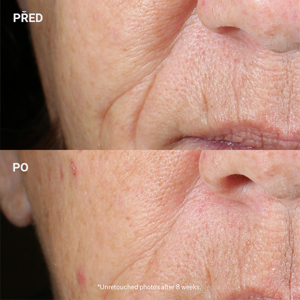 StriVectin-Peptight-Tightening_Brightening-Face-Serum_AURIO_before_after