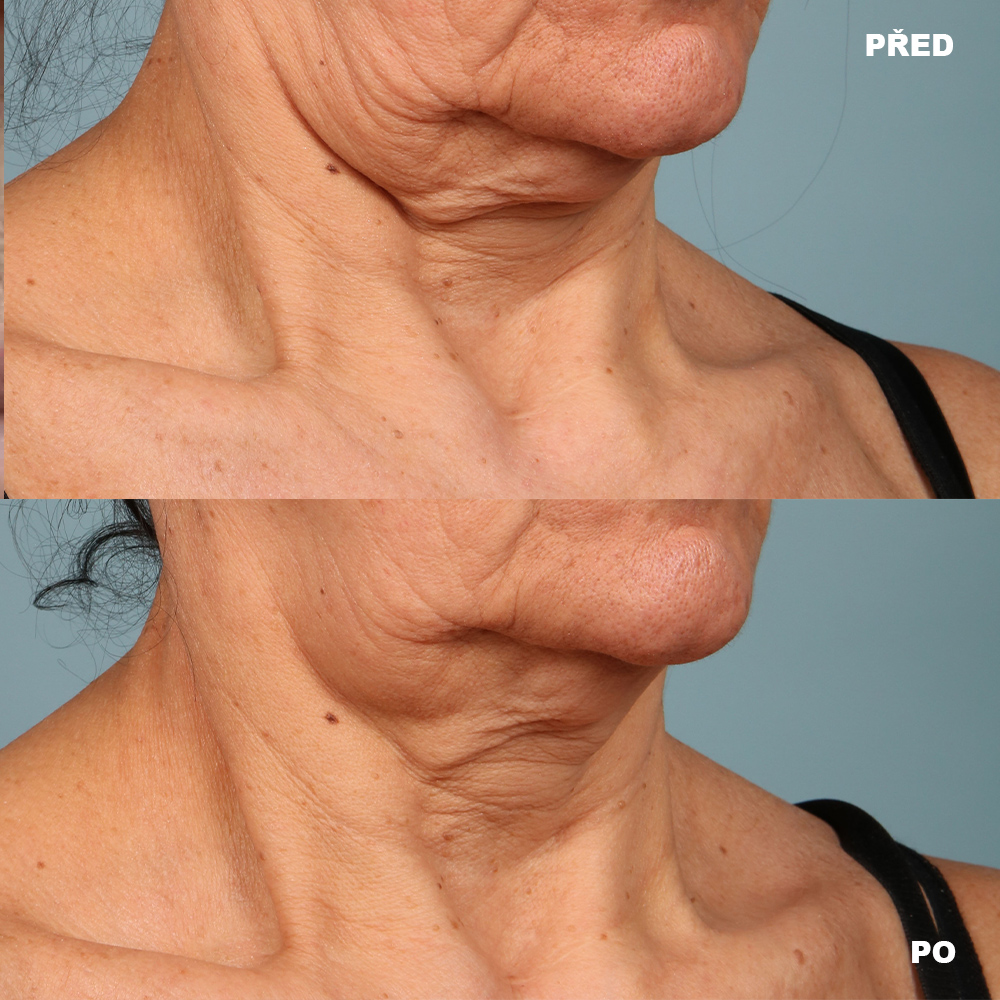 strivectin_face_and_neck_cream_PLUS_aurio_pred_po