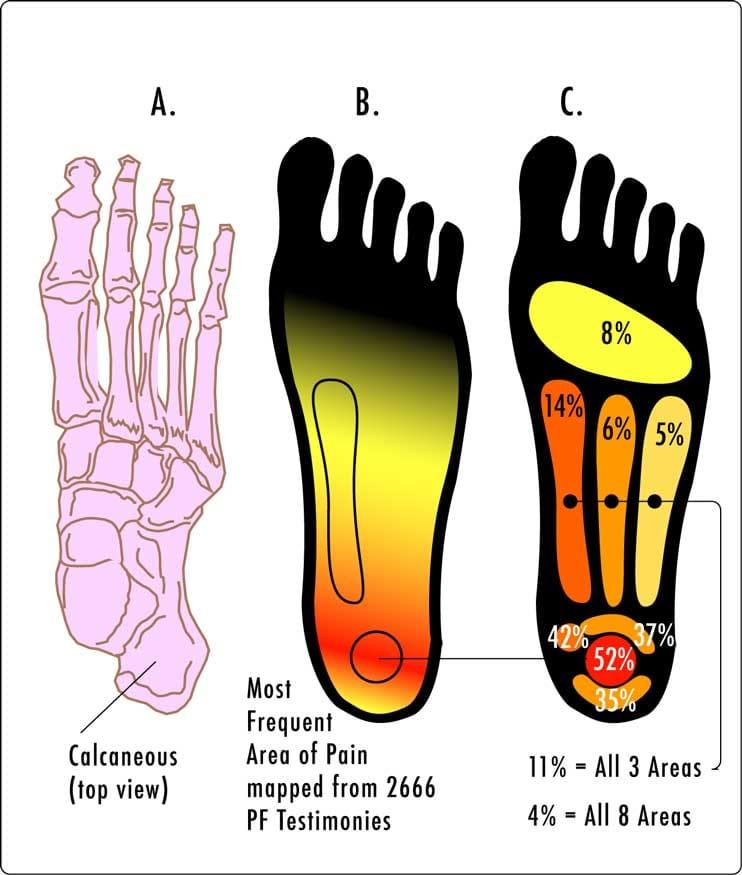 % zastoupení bolesti při obtížích s plantární fascií