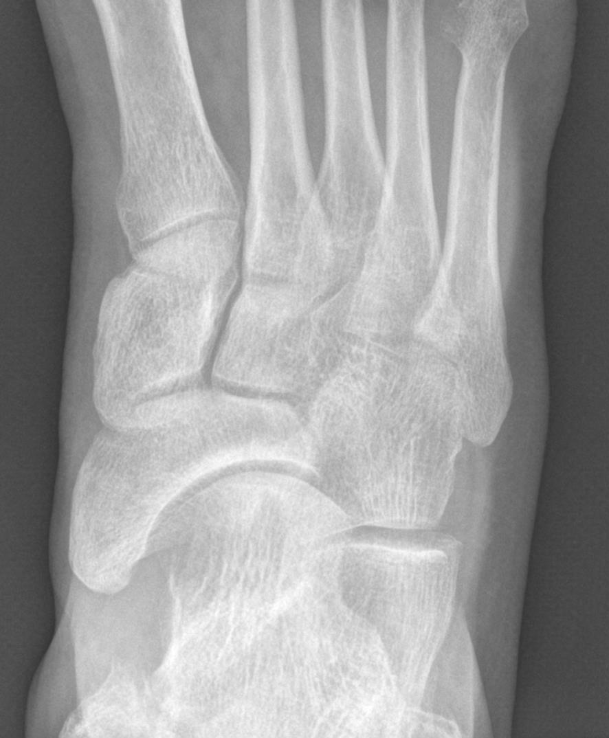 3. nejčastější poranění nohou u běžců
