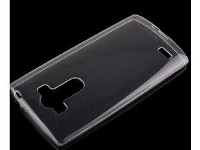Silikonový kryt na LG G4s (H735)  + Doprava zdarma