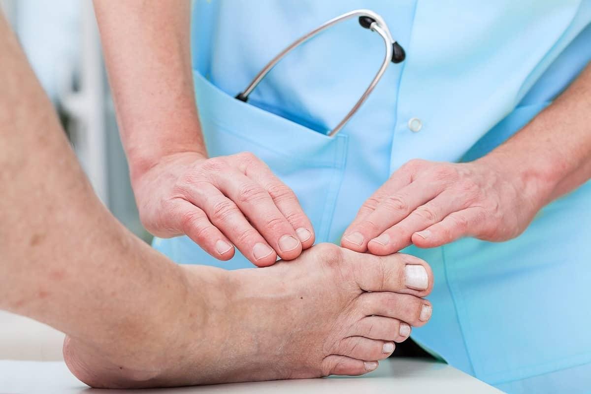 Hallux valgus (vybočený palec): Príčiny, príznaky a liečba halluxu