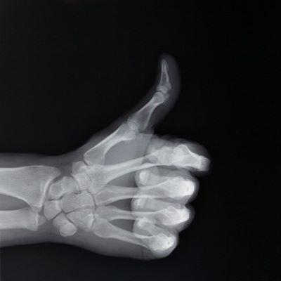 kĺby, kosti, osteoporóza, úrazy