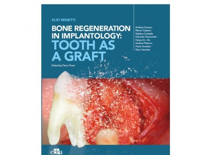Bone Regeneration Implantology