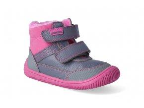 barefoot zimni obuv protetika tyrel fuxia 2