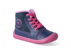 barefoot zimni obuv protetika amis fuxia 2