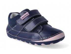 barefoot zateplena obuv protetika ned pink 2