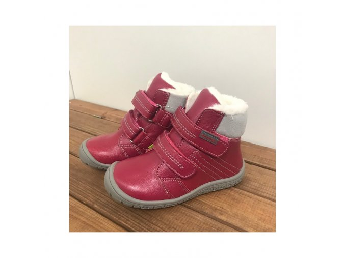 zimni boty artik fuxia protetika 4