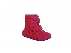 Zimní boty SUE, Protetika
