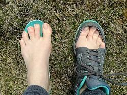 noha v nevhodné botě_1