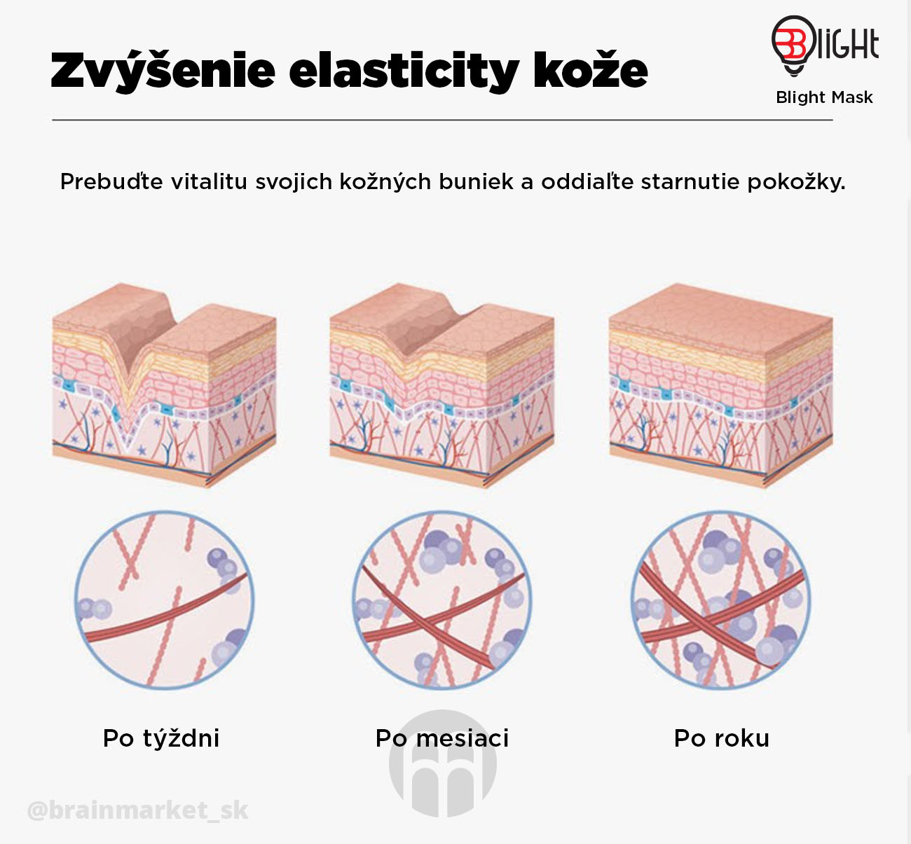 zvysenie-elasticity-koze-infografika-brainmarket-sk