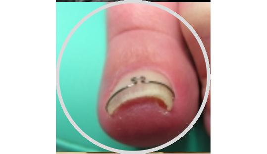 Zarůstající nehty