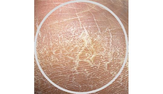 Zrohovatělá a popraskaná kůže