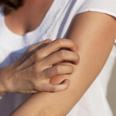 CBD a kožní potíže