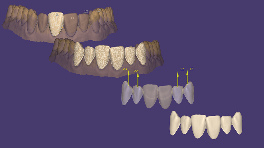 exocad_DentalCAD_Provisional-Workflow-Overview