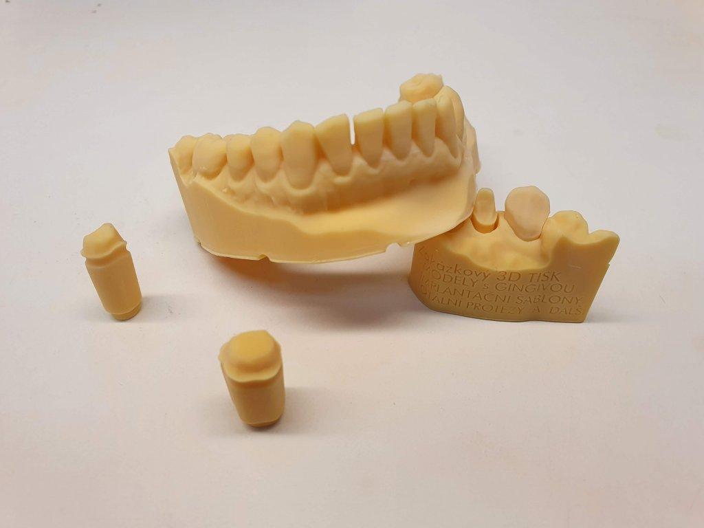 3D tisk stomatologických a ortodontických modelů z STL