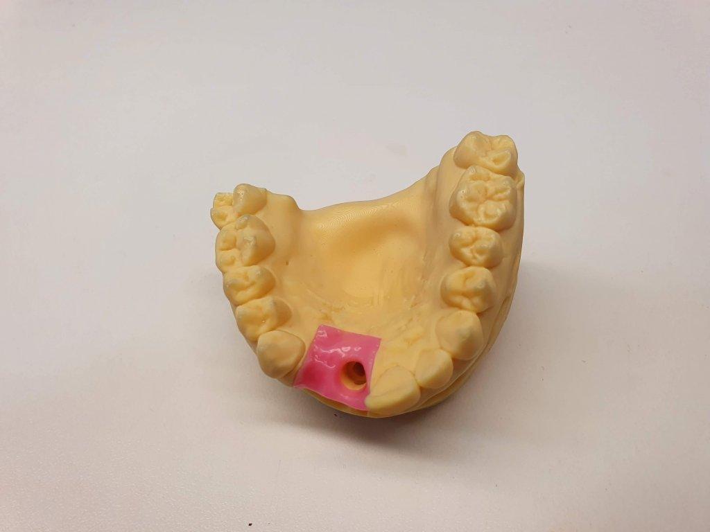 3D tisk stomatologických modelů s gingivou z STL