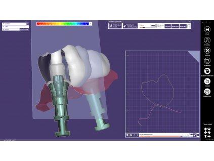 Pokročilý kurz DentalCAD - Implant