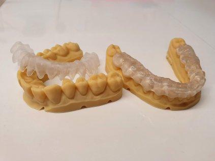 3D tisk dlah, splintů a implantačních šablon z STL