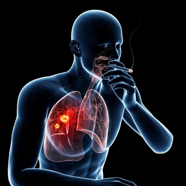 Plíce-a-kouření-640x640