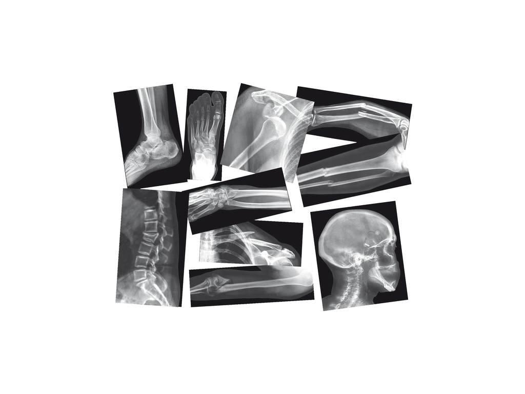 8928 rentgeny zlomenin