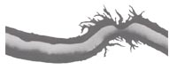 tricoclasis-podelna-oslabeny-vlas