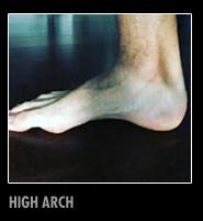 hi-arch