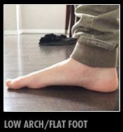 low-arch