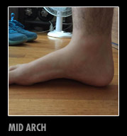 mid-arch2