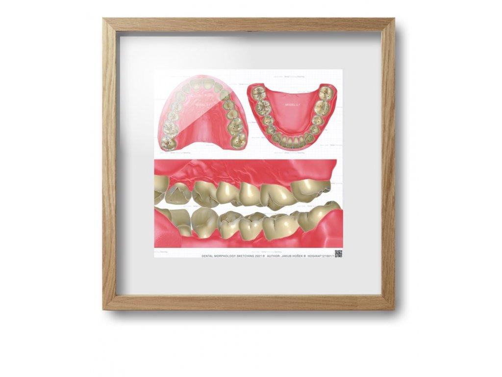 dental morpholodgy pictures.008