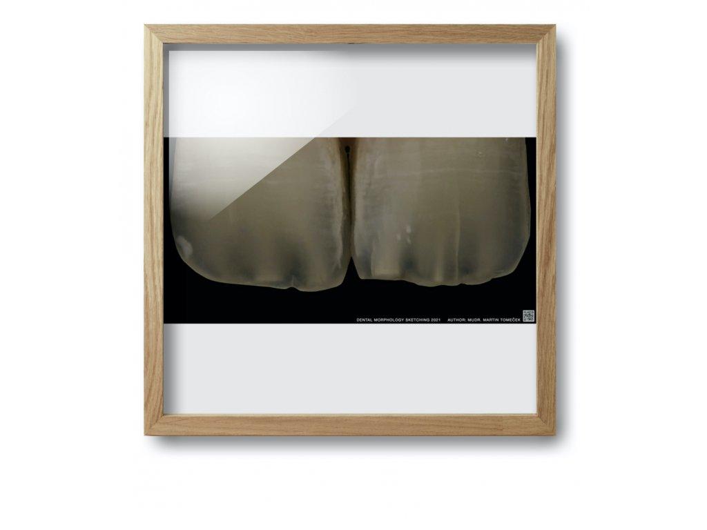 dental morpholodgy pictures tom.003 (kopie)