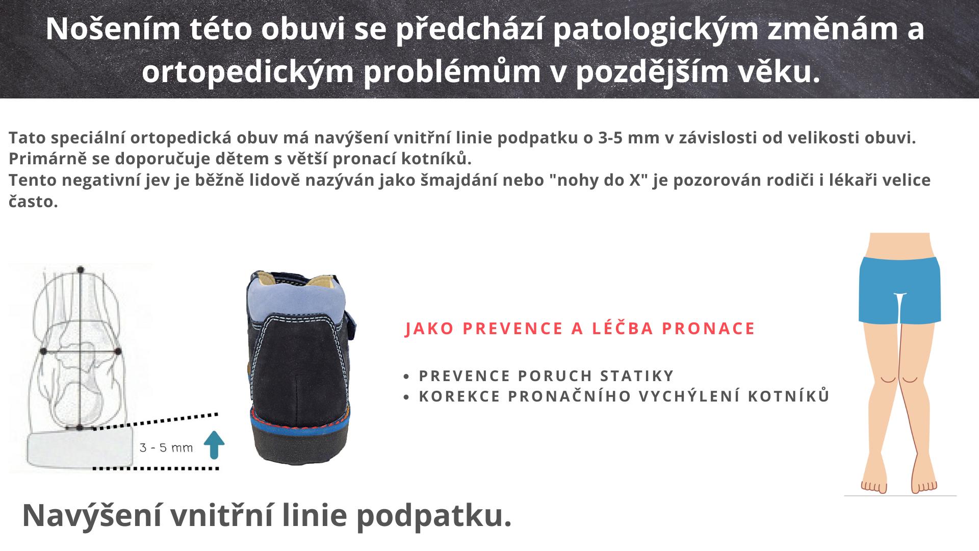 dětská zdravotní obuv na pronaci kotníků, šmajdání