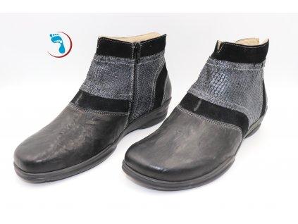 Celoroční kotníková obuv s podporou halluxu