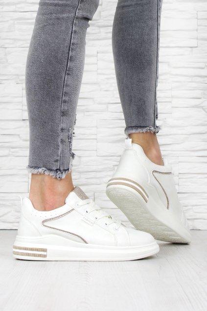 Dámské botasky AB765WH (1)